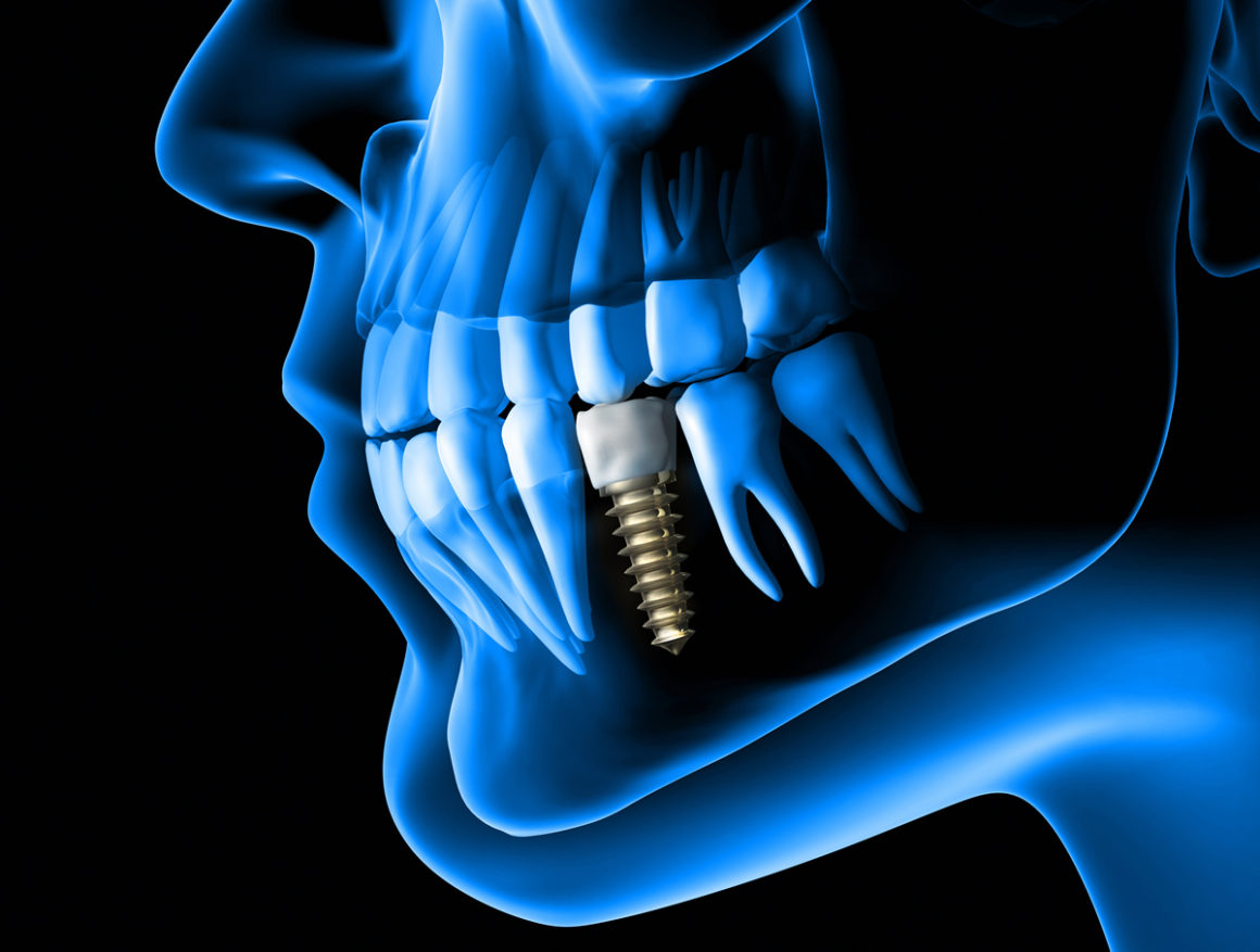 Implantología y Rehabilitación Oral sobre Implantes