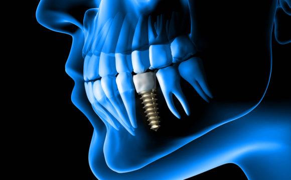 Implantología y Rehabilitación Oral sobre Implantes