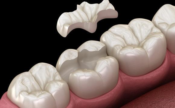 Odontología Conservadora, y Endodoncia Restauradora